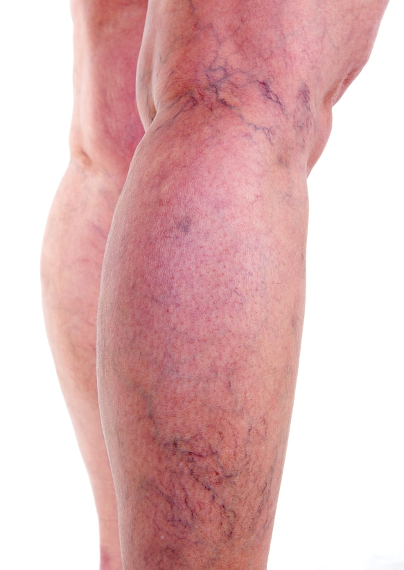 More Patients Exploring Sclerotherapy for Leg Veins