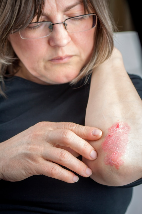 Psoriasis Now Affects Over 7 Million Americans