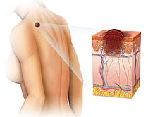 Significance of Skin Cancer Awareness