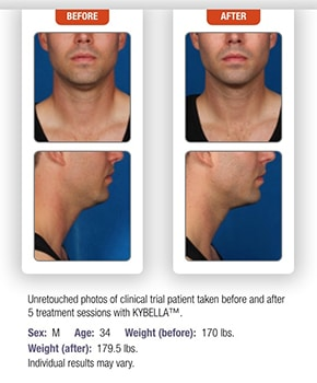 Kybella-Before-and-After-Male