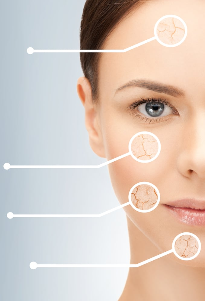 How to Treat Brown Spots