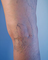 Spider Vein Treatment in Portland and Hillsboro, Oregon