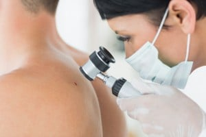 Dealing with Skin Cancer
