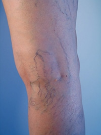 Sclerotherapy: An Effective Treatment for Spider Veins