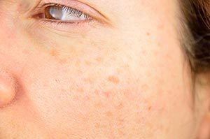 Brown Spots | Dermatology
