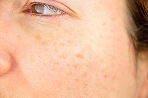 Cosmetic Dermatology Treatments for Stubborn Brown Spots