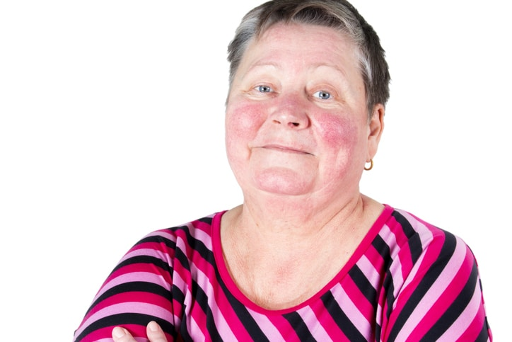 Do You Have Rosacea?