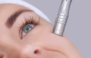The cosmetologist makes the procedure Microdermabrasion of the facial skin