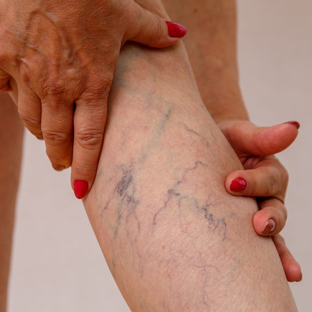 Fall's Good for Spider Vein Removal
